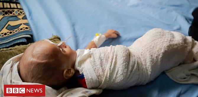 How youngsters are starving in Yemen's war