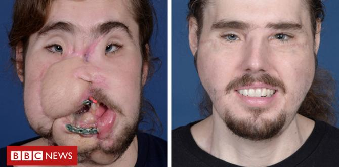 Cameron Underwood: Face transplant manner i will be able to smile again