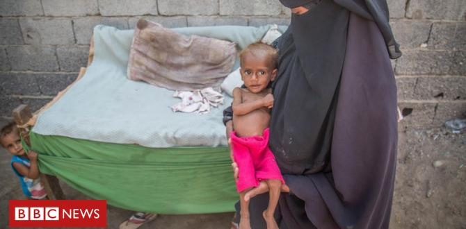 Yemen predicament: EIGHTY FIVE,000 kids 'dead from malnutrition'