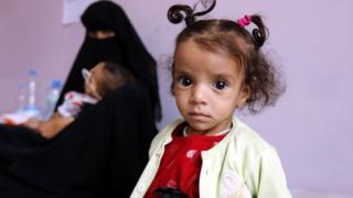 Yemen battle: Truce for lifeline port city of Hudaydah