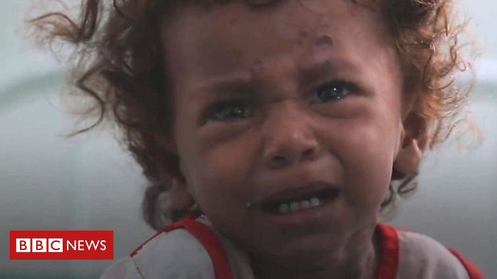 Yemen predicament: in the battle huday