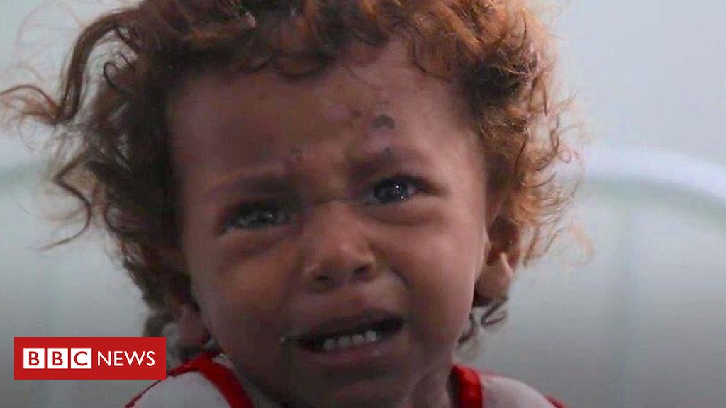 Yemen predicament: The battle for Hudaydah